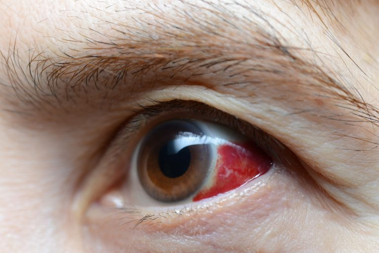5 horrible diseases your eye doctor diagnoses first