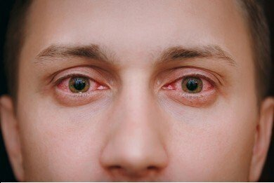 What's the difference between pink eye and allergies