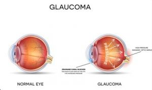 damage to the optic nerve
