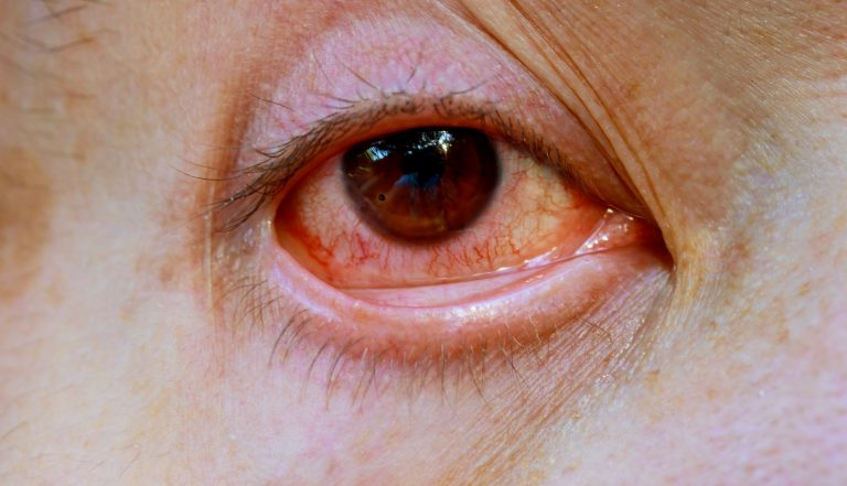 13 Health problem signs your eyes could be showing