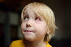 Eye Drops for Redness